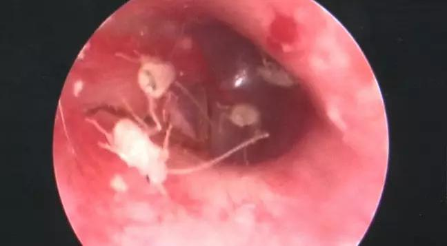Doctor Discovers Family Of Cockroaches Living Inside Man S
