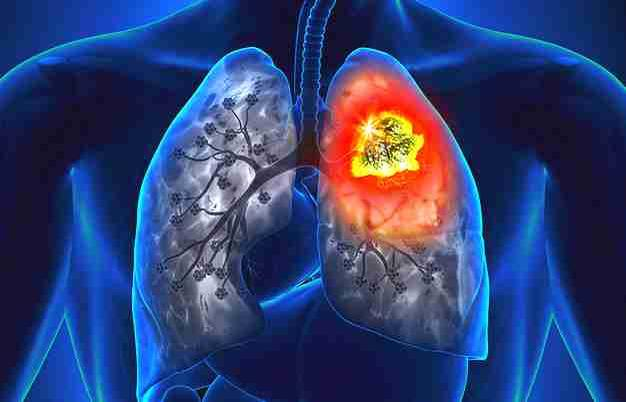 Stage 4 Lung Cancer >> Stage 4 Lung Cancer Survival Rate News Break