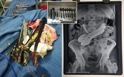 Doctors' shock after pulling out a KNIFE, eight spoons, screwdrivers, toothbrushes and a metal bar from the stomach of a 35-year-old who complained of unbearable pain