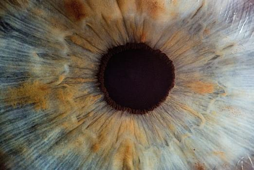 Picture for A New Approach in Glaucoma Treatment