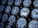 Picture for Artificial Intelligence May Find Signs Of Alzheimer's In Neuroimaging Data