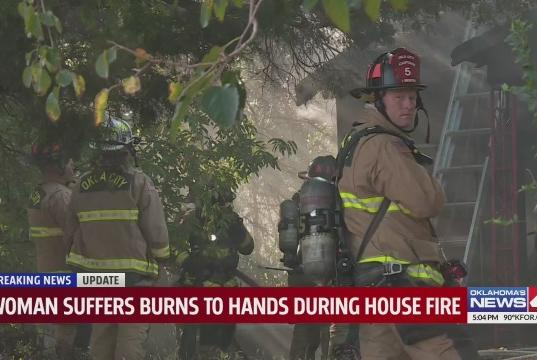 Picture for Woman suffers burns to hands during house fire