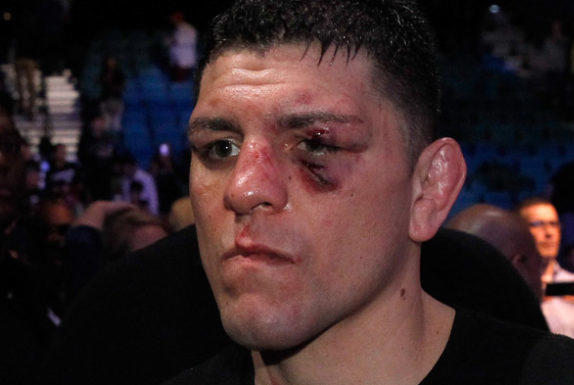 Picture for [ARCHIVES] Nick Diaz Jumped By Four Men In Wild Nightclub Brawl