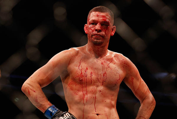 Picture for Dana White Provides An Update On Nate Diaz