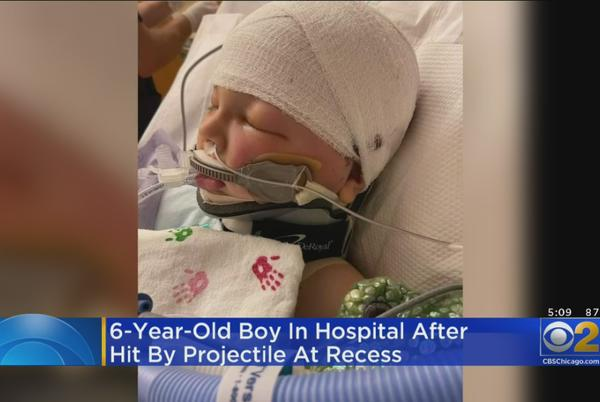 Picture for 6-Year-Old Boy Fighting For His Life After Piece Of Flying Metal Hits Him In Head During Recess In Southeast Wisconsin