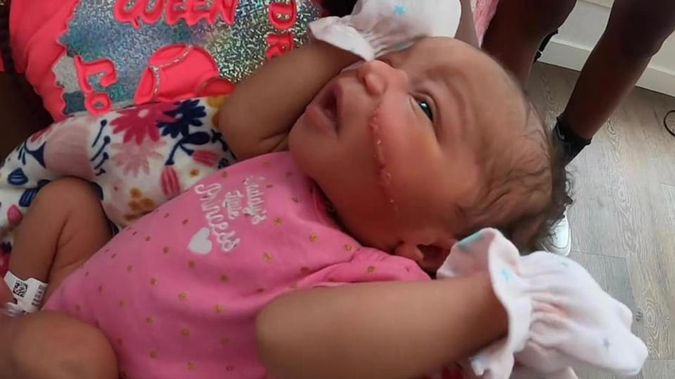 Picture for A Newborn baby's face gets cut during an emergency C-section