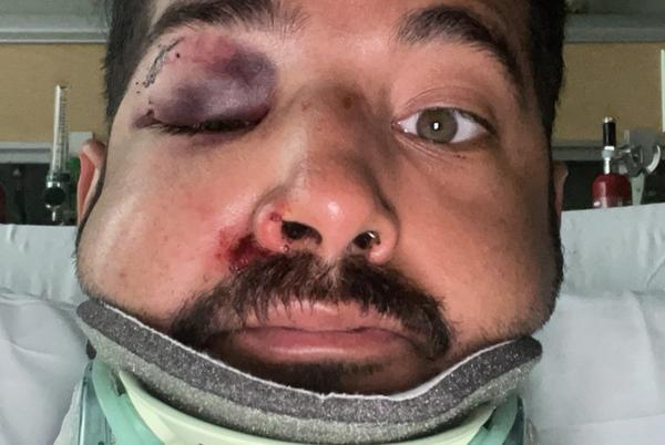 Picture for San Diego Man Brutally Beaten in Anti-Gay Hate Crime