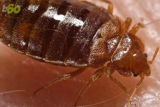 Picture for Woman sues Farmington motel, alleges multiple bites from bed bugs