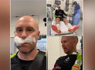 Picture for Ben Dunk injured during practice, receives seven stitches