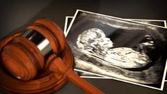 Cover for Appeals court refuses to reinstate N Carolina abortion ban