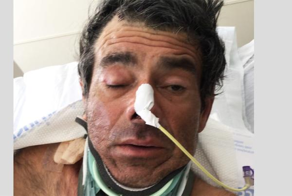 Picture for He can't remember his name or where he's from. A California hospital hopes someone can identify him.