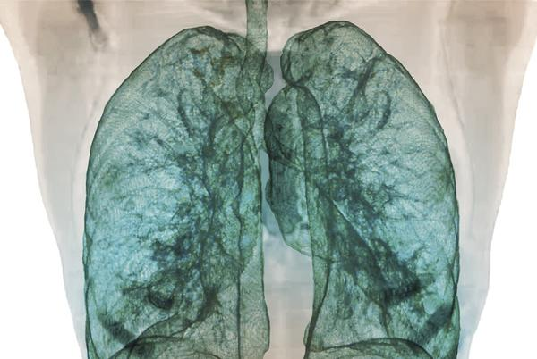 Picture for High Viral Load in Lungs Linked to COVID-19 Mortality