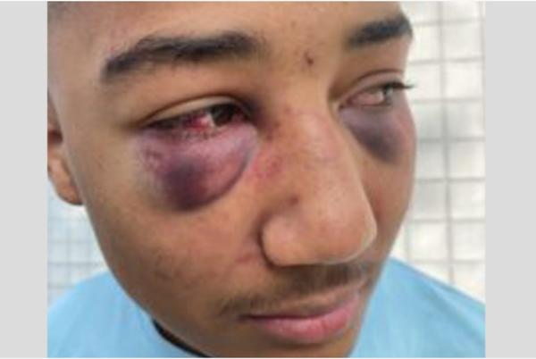 Picture for Former California Police Officers Indicted For Beating Black Teenager