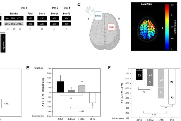 Picture for Improving online and offline gain from repetitive practice using anodal tDCS at dorsal premotor cortex