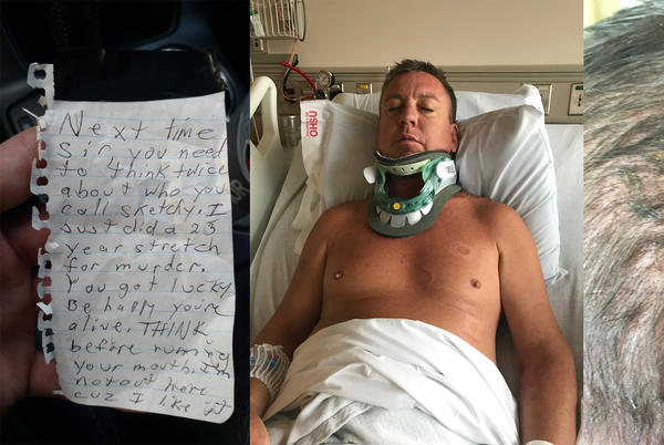 Picture for Portland man dies 3 years after surviving brutal attack