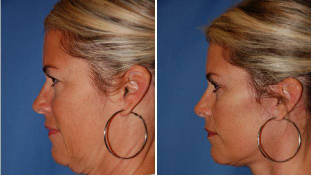 Cover for Facelift Surgery in Seattle WA