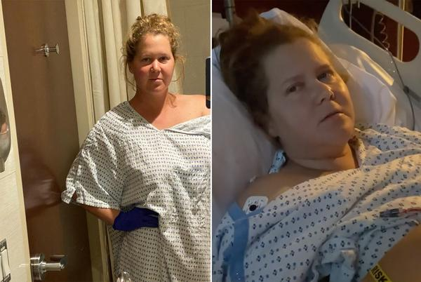 Picture for Amy Schumer has uterus and appendix removed because of endometriosis