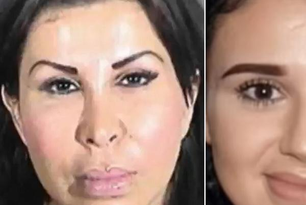 Picture for Mother and Daughter Arrested for Murder After Allegedly Performing Illegal Plastic Surgery at Home
