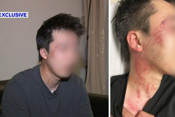 Picture for Exclusive: Asian man feared for life during road rage attack on Cross Bronx Expressway