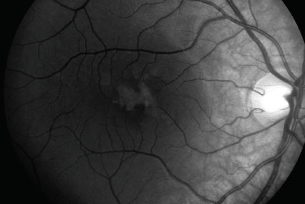Picture for CASE REPORT: Self-induced maculopathy by 12-year-old boy