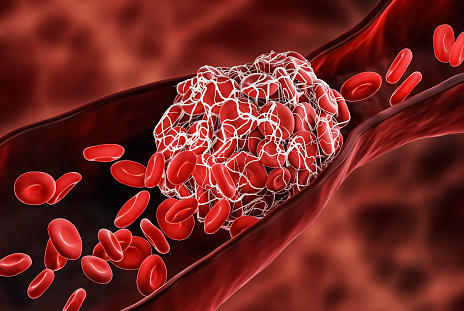 Picture for Rivaroxaban Shows Promise For Pediatric Fontan Procedure Patients at Risk for Blood Clots
