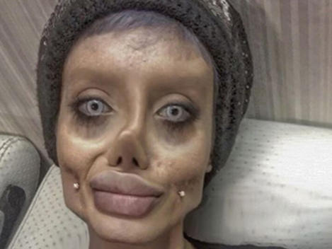 Sahar Tabar See Pics Of Angelina Superfan Before Her Reported Surgeries News Break